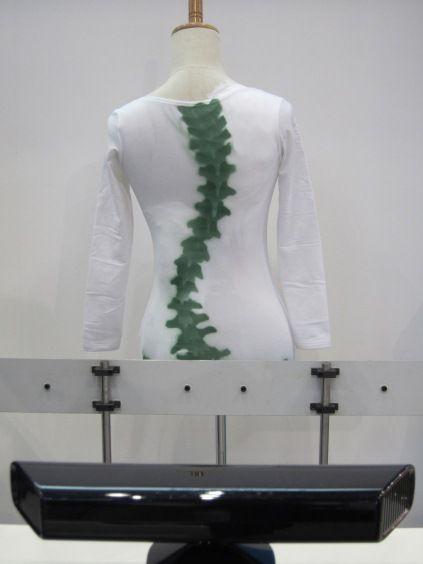 Kinect测量脊椎侧弯