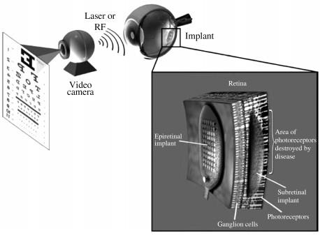 人造视网膜原理示意图