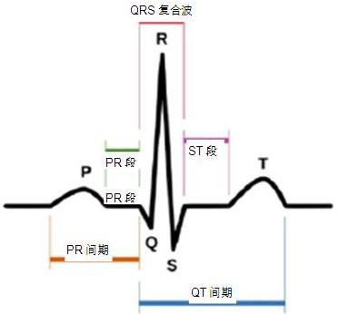 心电图中的 P-QRS-T波