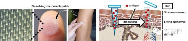 微針疫苗注射技術