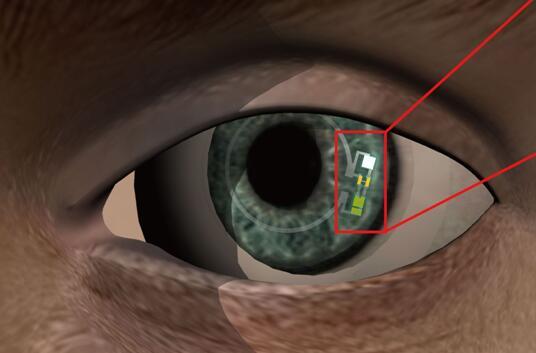 图例:隐形眼镜佩戴在人眼上的样子 来源: Jang-Ung Park, UNIST