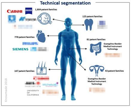 光学相干层析医学成像技术细分