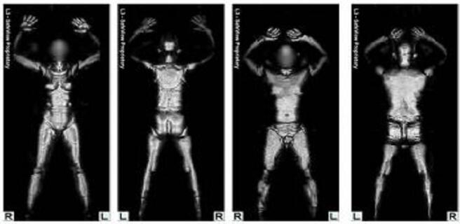 太赫兹扫描的人体躯干