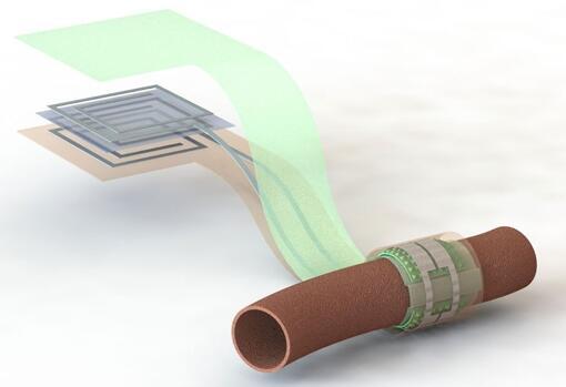 上图描绘了这款可生物降解的压力传感器,它围绕着一根血管,天线在左侧(分离的层状结构,展示了天线结构的细节)