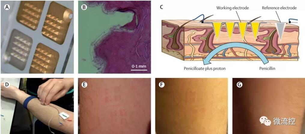 新型皮肤微针贴片可实时测量患者的抗生素水平