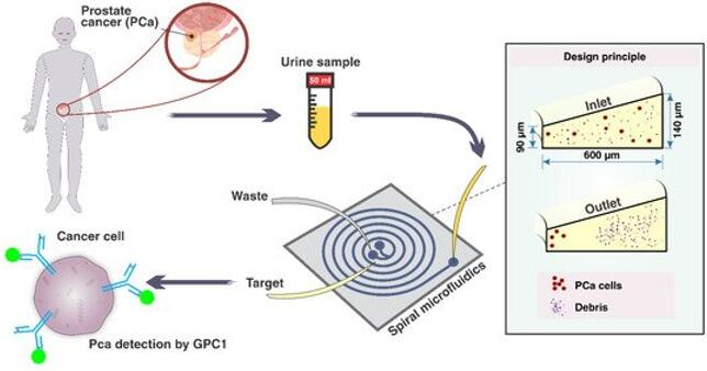 有望无创检测前列腺癌的微流控芯片