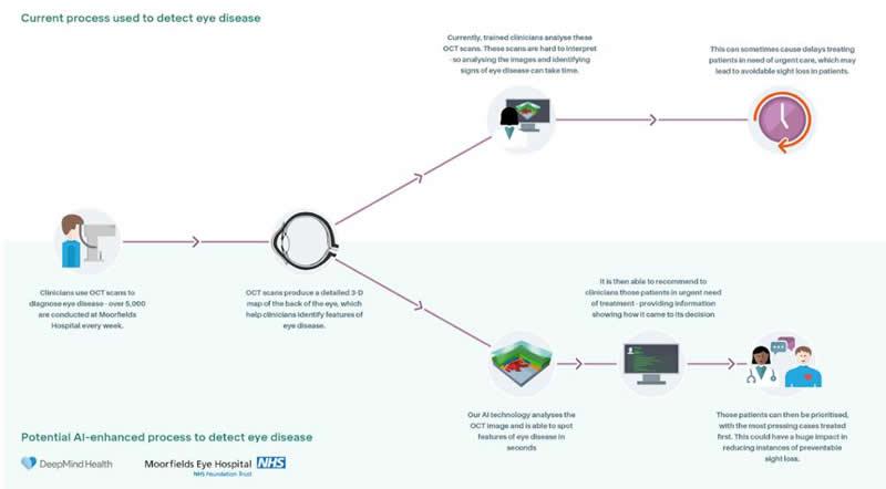 DeepMind如何帮助眼科疾病的诊断