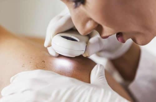 检测皮肤癌