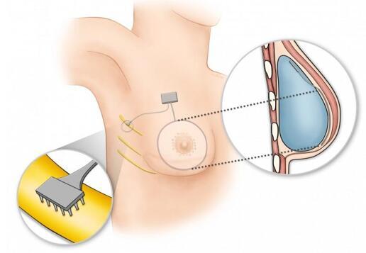 使用植入物重建乳房的仿生乳房概念示意图