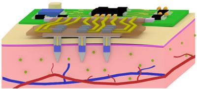 微介入式传感器原理模型,这种传感器可持续监测体内疾病信息