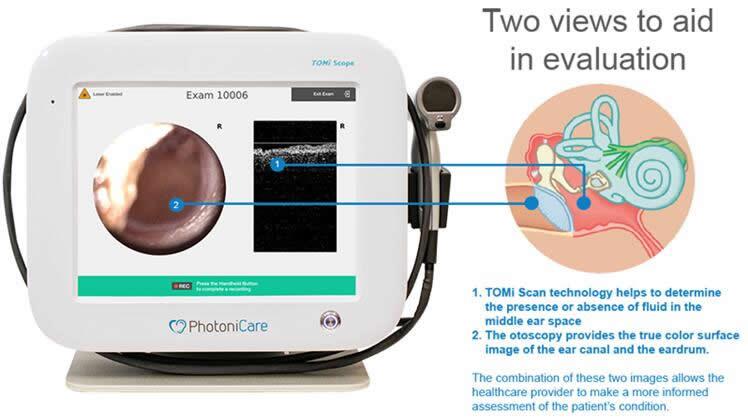 Photonicare的TOMi Scope中耳非侵入式光学成像获FDA批准许可