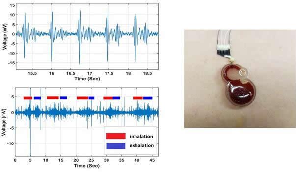 右图:可穿戴传感器放置于患者胸部;左上:传感器获取的心脏跳动信号;左下:传感器获取的呼吸信号