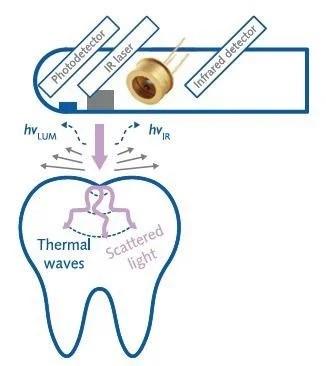 红外探测在龋齿早期检测中的应用