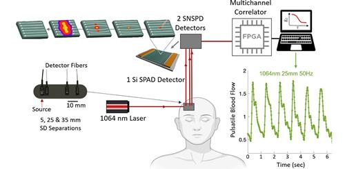 超导纳米线单光子探测器首次应用于非侵入性脑部血流检测